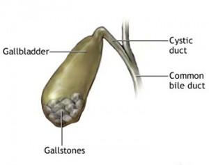 Gallstones Causes Treatment